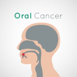 Oral Cancer Geneva IL